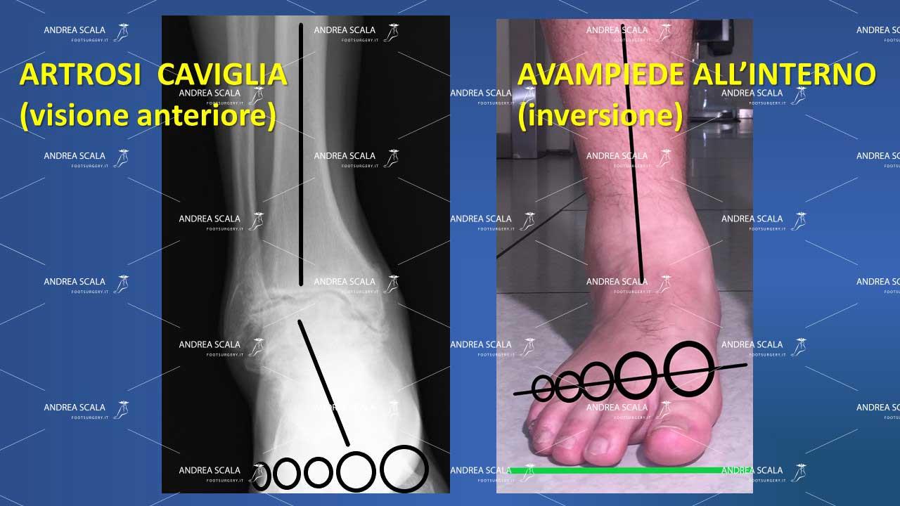artrosi caviglia anteriore