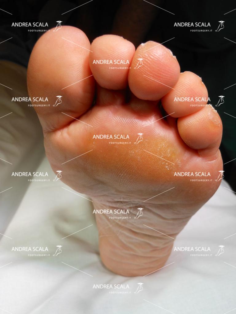 callosità dolorosa della pianta del piede che caratterizza la metatarsalgia