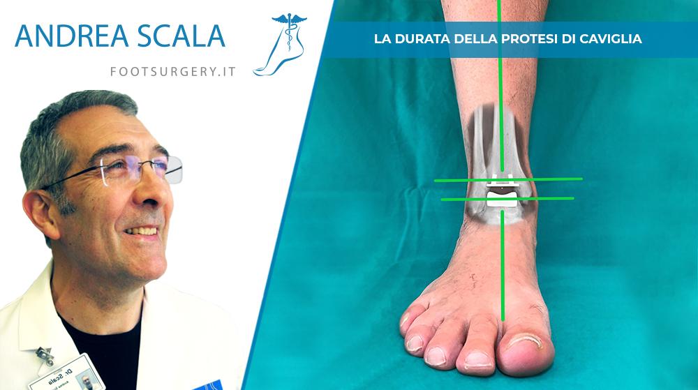 La durata della protesi di caviglia