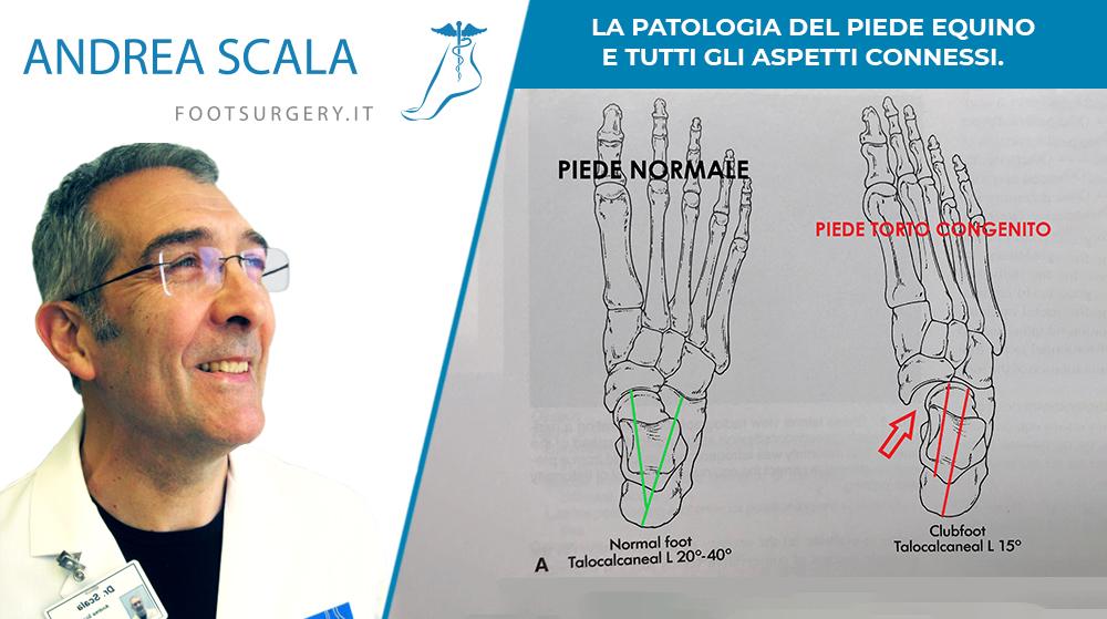 La patologia del piede equino e tutti gli aspetti connessi.