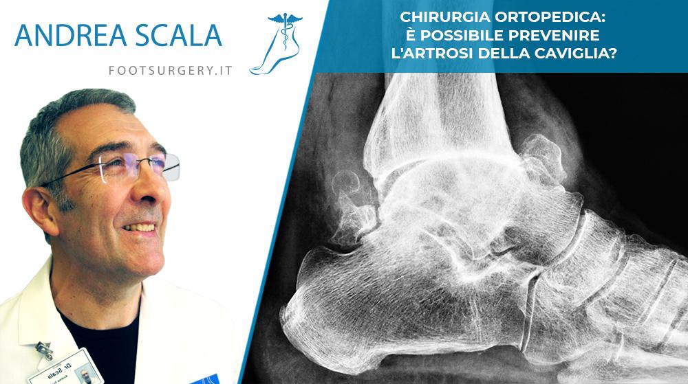 prevenzione artrosi caviglia
