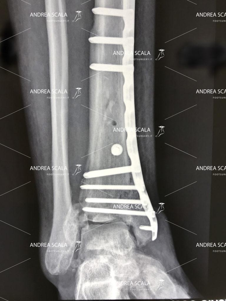 grave-frattura-della-caviglia