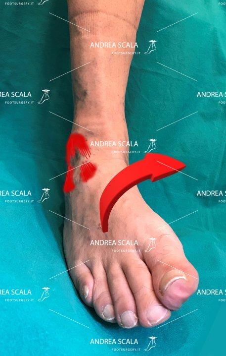 meccanismo-rottura-legamento-caviglia