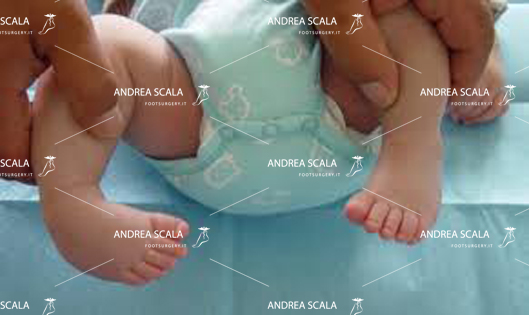 visione anteriore piede torto congenito
