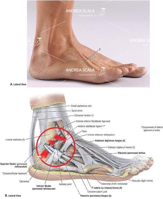 schema legamenti caviglia