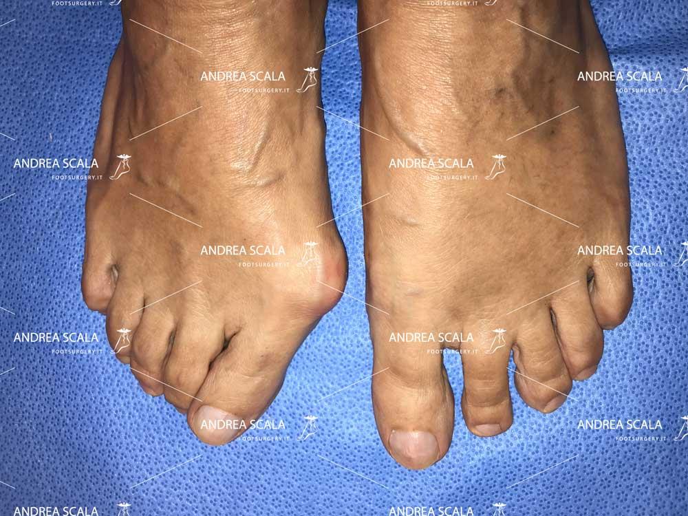 La foto mostra il caratteristico aspetto clinico dell'alluce valgo. L'altro piede è stato operato ed allineato correttamente con la tecnica mini-invasiva del dott. Andrea Scala.
