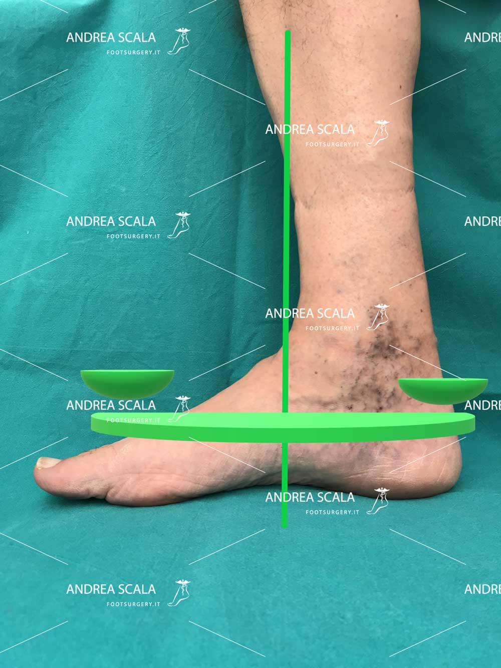 aspetto-normale-caviglia-sotto-carico