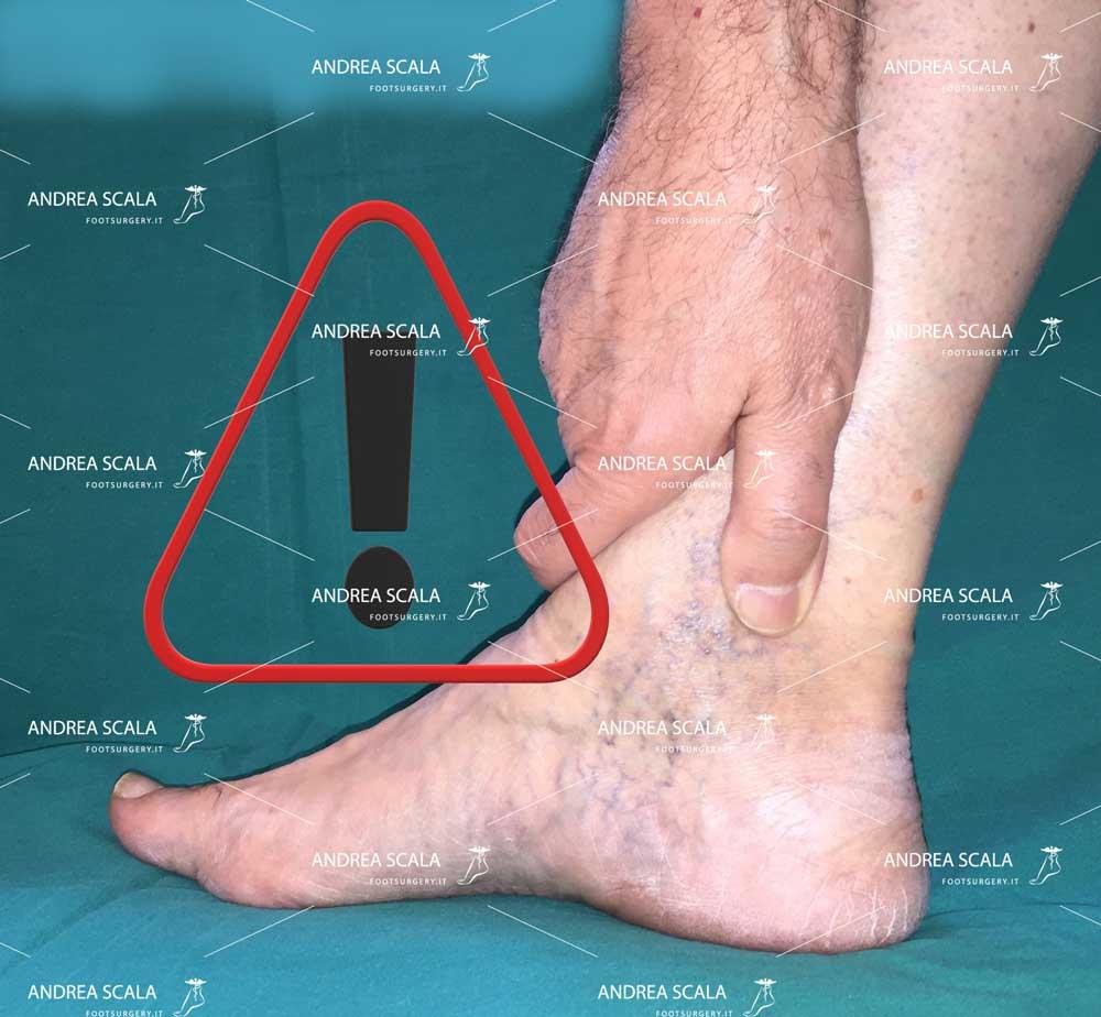 Tempi di recupero e prevenzione ortopedica per il piede