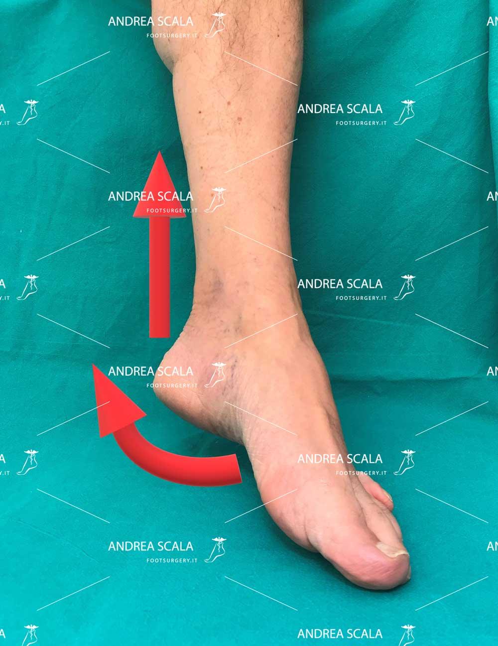 contrattura-spastica-caviglia
