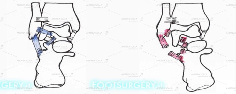 Schema della anatomia della caviglia: i legamenti