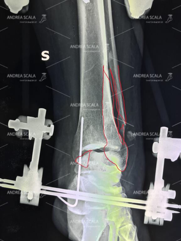 La frattura del perone e del malleolo tibiale è stata trattata con fissatore esterno.