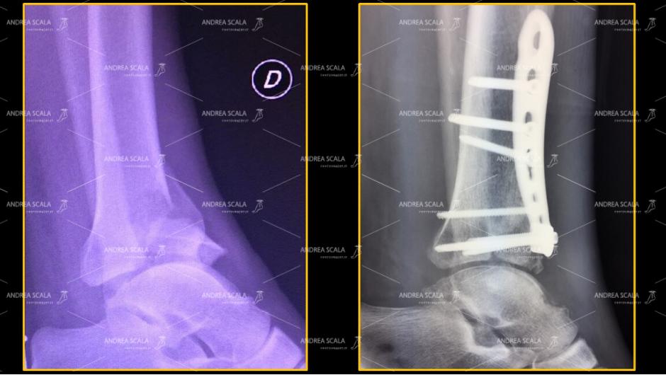 """frattura della superficie articolare e della sovrastante metafisi distale di tibia fratture del """"pilon tibial""""."""