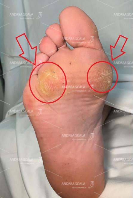 La pianta del piede presenta metatarsalgia.
