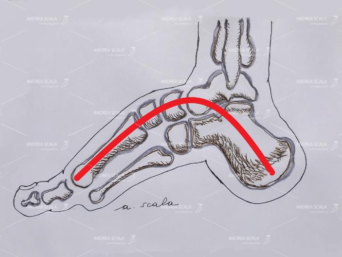 Il disegno mostra che l'arco del piede è molto pronunciato.
