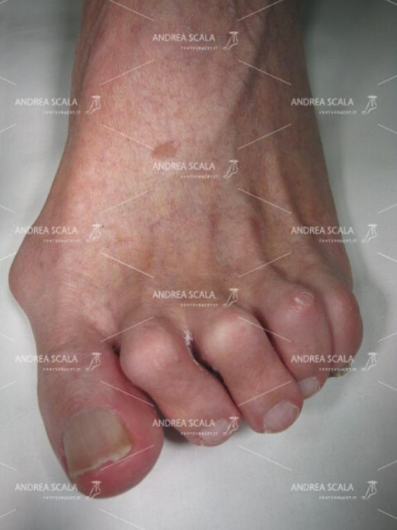 Si vede molto bene che la paralisi ha causato anche una grave deformità delle dita del piede. In queste condizioni è molto difficile indossare le scarpe.