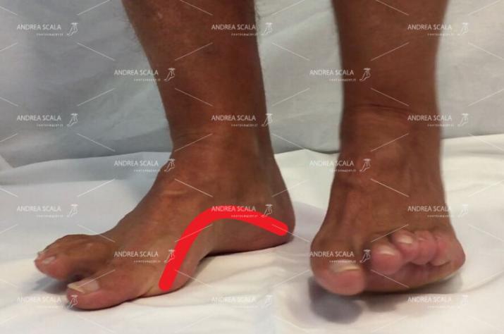 L'arco mediale del piede è accentuato