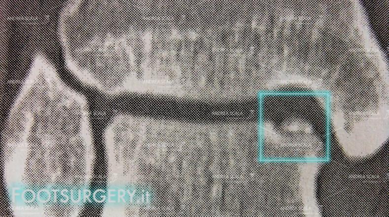 La TAC del paziente mostra che l'angolo dell'astragalo si è frammentato