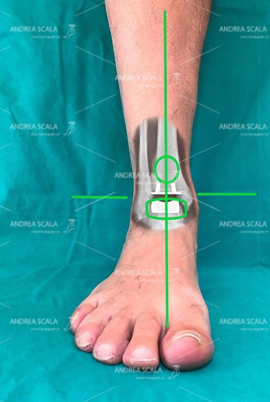 Protesi di caviglia: i tempi del il recupero post-operatorio