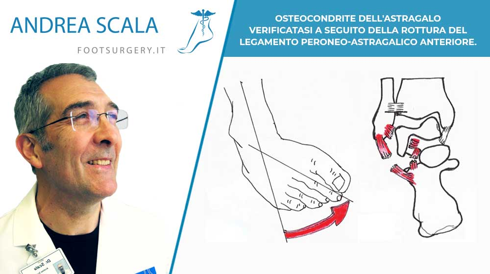OSTEOCONDRITE DELL'ASTRAGALO verificatasi a seguito della rottura del LEGAMENTO PERONEO-ASTRAGALICO ANTERIORE.