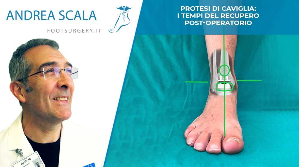 Protesi di caviglia: i tempi del recupero post-operatorio