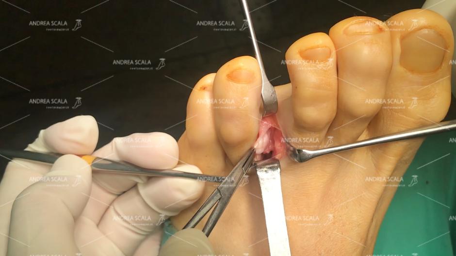 la foto mostra un passaggio dell'intervento chirurgico effettuato dal dottr Andrea scala per l'asportazione del Neuroma di Morton tra il 3° e 4° dito.