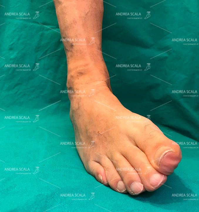 Rottura legamenti della caviglia