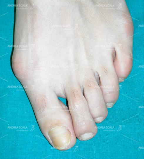 La foto mostra un quadro di alluce valgo.