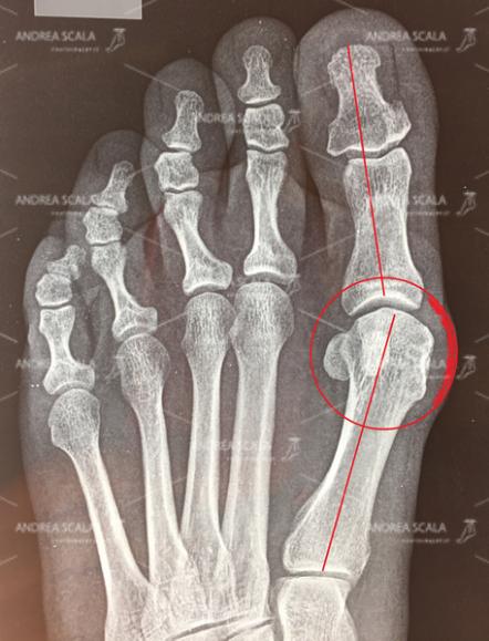 La Rxgrafia mostra il caso di alluce valgo prima dell'intervento.