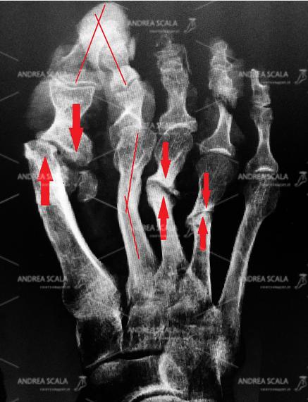 La Rxgrafia mostra un intervento per alluce valgo e metatarsalgia eseguito altrove e senza la opportuna fissazione. Tutte le ossa sono state tagliate con un frullino, non sono state fissate, si sono tutte spostate, creando un disastro.
