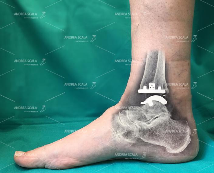 Protesi di caviglia: su misura è sempre meglio
