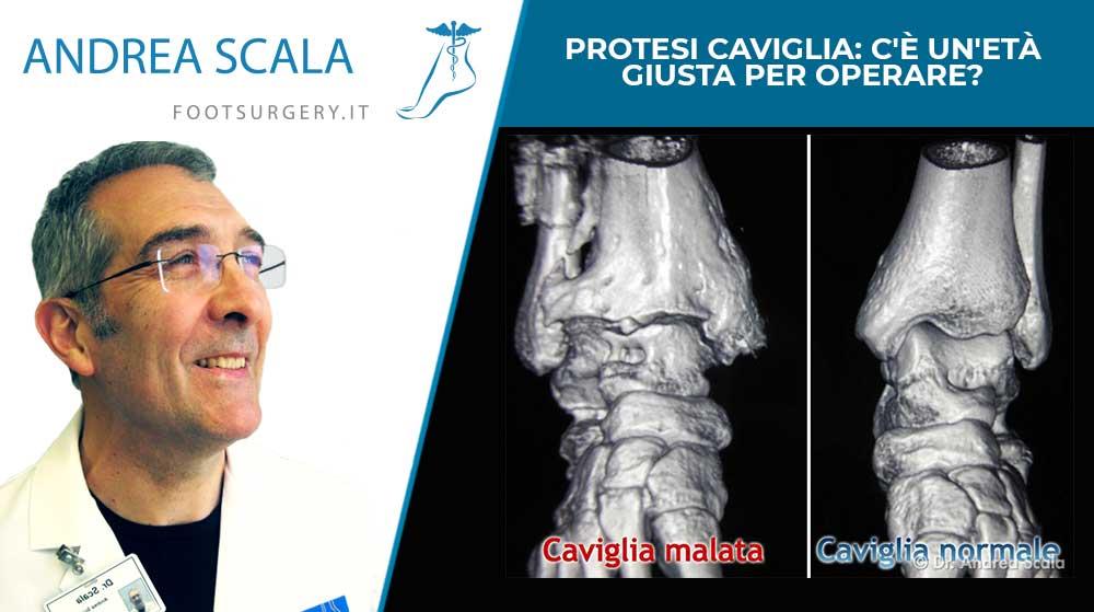Protesi caviglia: c'è un'età giusta per operare?