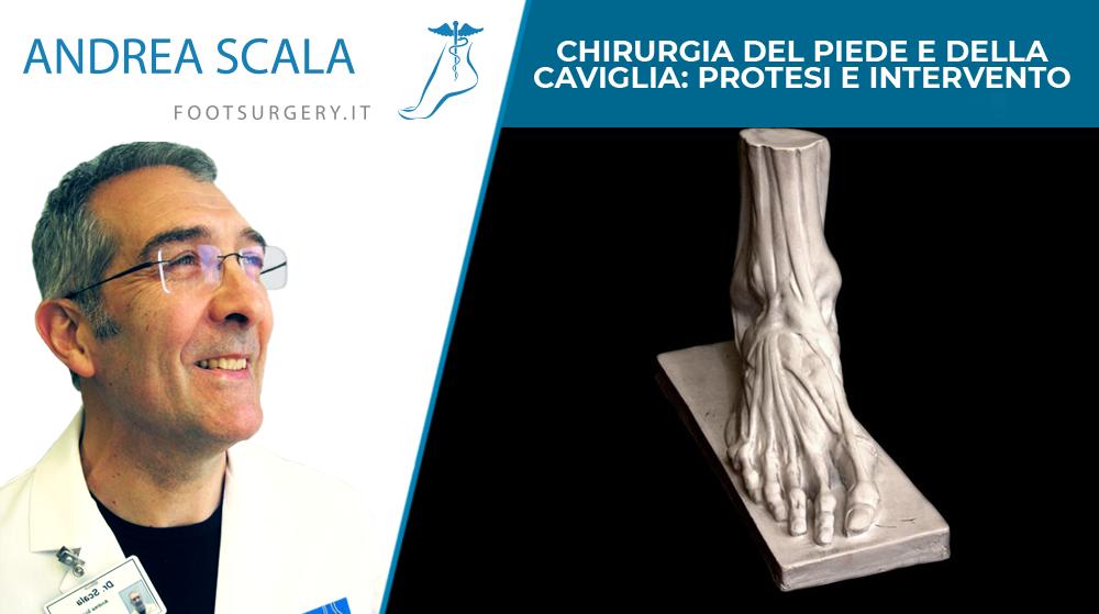 Chirurgia del piede e della caviglia: protesi e intervento