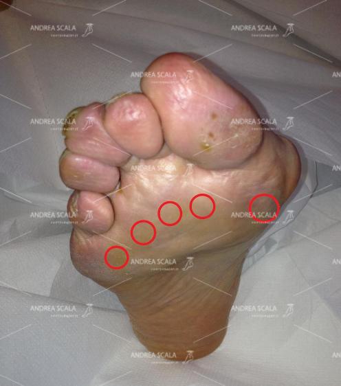 La foto mostra la parte della pianta del piede dove si sviluppa la metatarsalgia, in corrispondenza delle teste metatarsali