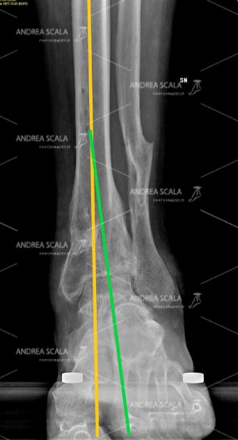 La RXgrafia sottocarico mette in evidenza l'artosi di caviglia dopo una grave frattura. La Rx grafia mostra che la frattura ha spostato l'ASSE BIOMECCANICO dall'ASSE ANATOMICO. Questo spostamento va attentamente calcolato prima di impiantare la protesi della caviglia. Si vede che il paziente ha già subita la frattura del perone dalla quale è guarito. Non si vede il motivo scientifico perché si dovrebbe di nuovo rompere il perone e rifare un danno per l'organismo per impiantare la protesi di caviglia.