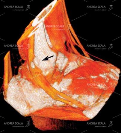 16 L'esame TAC più avanzato consente di esaminare il decorso dei tendini. Questa immagine TAC antero laterale fa vedere che i tendini peronieri sono sofferenti a causa della presenza di un frammento osseo (freccia nera) esito delle numerose distorsioni riportate nella pratica sportiva.
