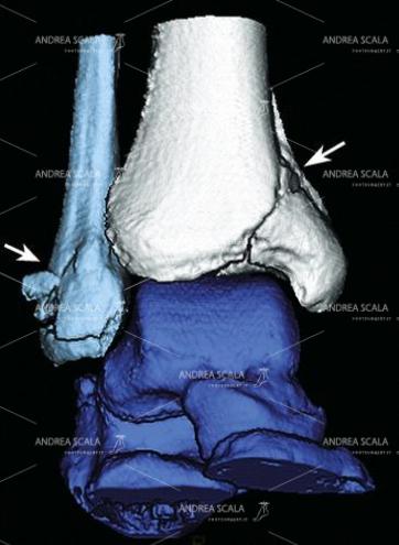 19 L'esame TAC con taglio coronale più specifico mette in evidenza una frattura del pilone tibiale non evidente nella RXgrafia normale.