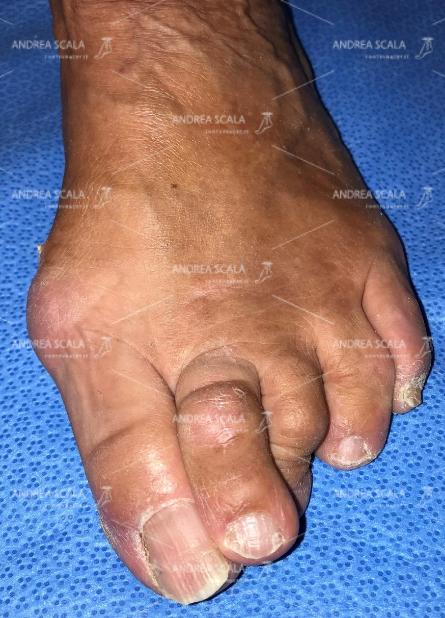 La foto mostra l'avampiede affetto da metatarsalgia, con deformità delle dita.
