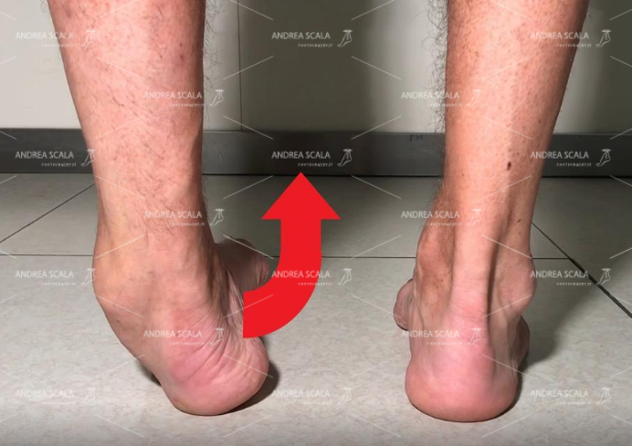"""La foto del paziente mentre fa il movimento della """"storta della caviglia"""". L'asse della tibia non è più normale in asse con il piede. Tutto il piede è spostato all'interno perché non è trattenuto dai legamenti."""