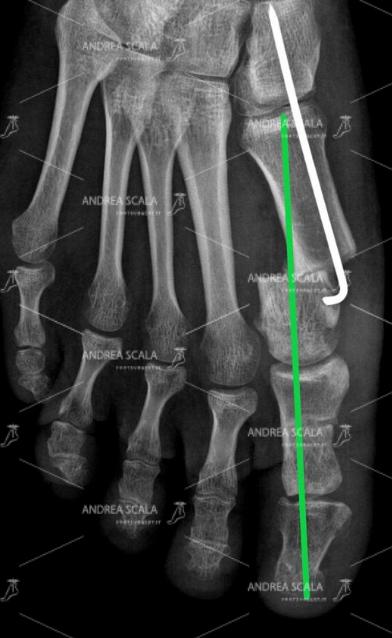 La RXgrafia post-operatoria mostra che l'alluce ed il primo metatarso sono in asse. Il 1° metatarso non è spostato e la testa è molto rientrata. Il filo metallico inventato dal dott. Andrea Scala è l'assicurazione sulla vita che l'alluce valgo non tornerà più.