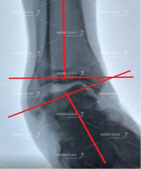 La RXgrafia mostra la caviglia di uno sportivo sotto stress. Quando avviene il movimento della distorsione il piede non è trattenuto dai legamenti. L'asse della tibia non è più in asse con il piede. L'astragalo ed il calcagno sono completamente spostati all'interno