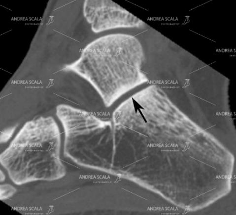 4 Questo è un esempio di taglio sagittale che mette in evidenza sia la tibio tarsica che la sottoastragalica, che viene indicata con una freccia nera.
