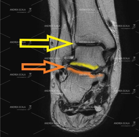 Le frecce indicano la visione sagittale dell'articolazione tra calcagno e astragalo. Quando il calcagno è fratturato si deve operare.