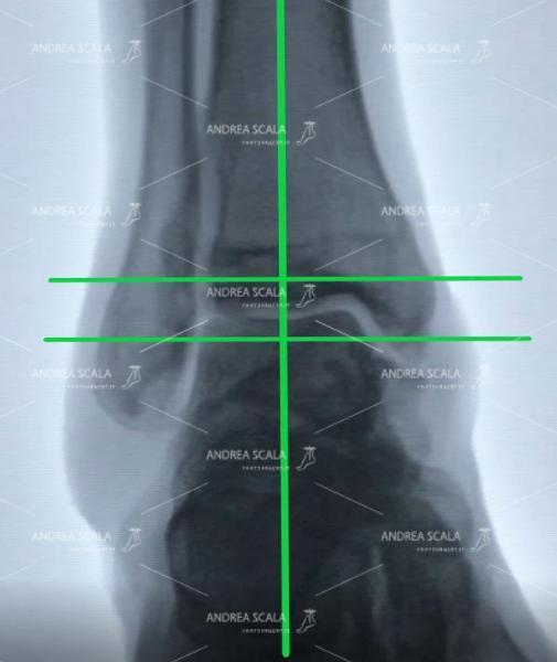 La RXgrafia mostra la caviglia di uno sportivo in fase di riposo. La caviglia è normale con la tibia in asse con il piede.