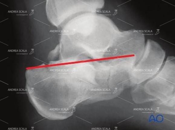 La linea rossa fa vedere lo schiacciamento del calcagno, ma spesso nessuno se ne accorge in pronto Soccorso.