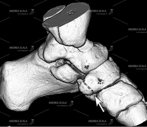 5 Questa ricostruzione 3D del versante mediale dell'arco del piede è molto ben eseguita e molto ben dettagliata. Le ricostruzioni 3D devono essere almeno 6 per ogni piede.
