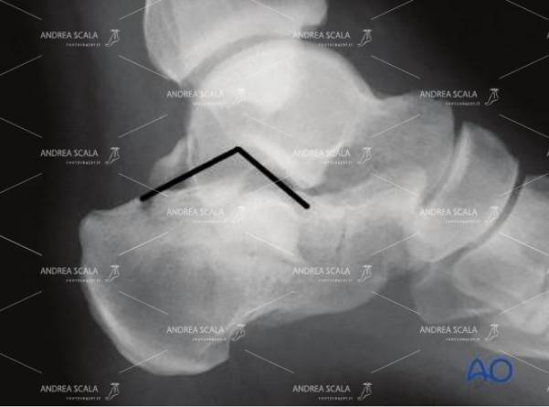 In realtà l'articolazione del calcagno normale ha una forma triangolare (angolo di BOHELER), ma questo viene ignorato. Molto spesso.