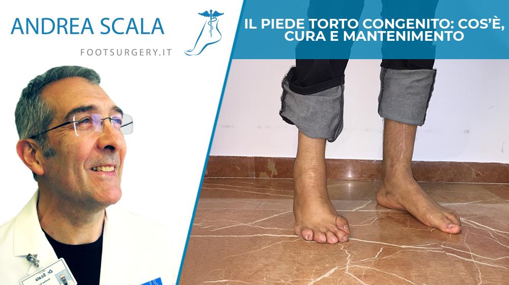 Il piede torto congenito: cos'è, cura e mantenimento
