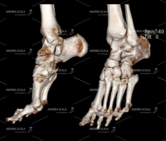 Lo schema mostra che è sbagliato lasciare che il paziente faccia passivamente cadere il piede come quando è sul proprio divano- sofa. In questo modo sembra che il piede sia deformato in equinismo. Il piede va tenuto a 90 gradi. Oppure appoggiato alla superficie dell'apparecchio TAC. Tranne quando c'è una deformità grave. Le immagini 3D devono essere almeno sei per ogni piede.