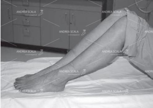 La posizione per l'esame TAC per il taglio coronale deve essere con i piedi appoggiati al piano dell'apparecchio e con le ginocchia flesse