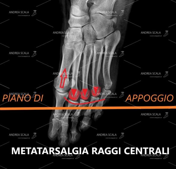 neuroma di Morton Radiografia